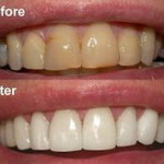 teeth-whitening-before-after